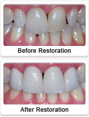 ceramic dental crowns