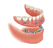 All on 4 - implant retained denture