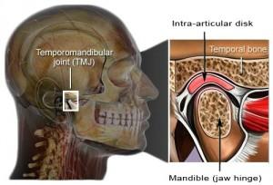 TMJ cutaway